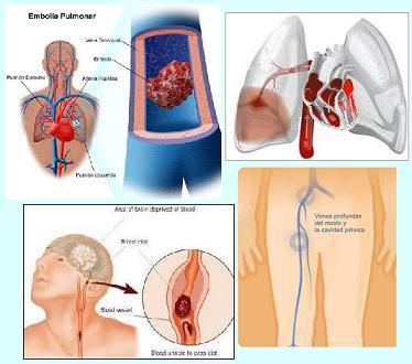 La urología. La várice varicosa
