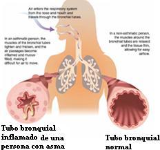 Asma del adulto European Lung Foundation - ELF
