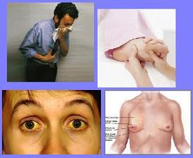 La coagulación láser de los vasos sobre la persona krasnodar