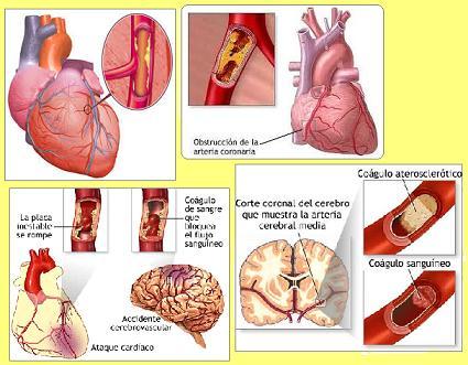 da30851010854 Tipos de Enfermedades Cardiovasculares