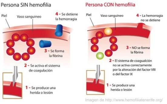 Que Es La Hemofilia Y Cuales Sus Tipos