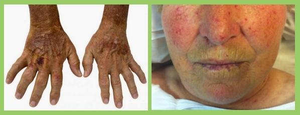 Resultado de imagen para esclerodermia