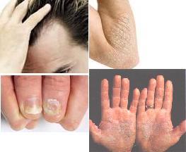 La psoriasis sobre la cabeza el tratamiento por los modos públicos las revocaciones